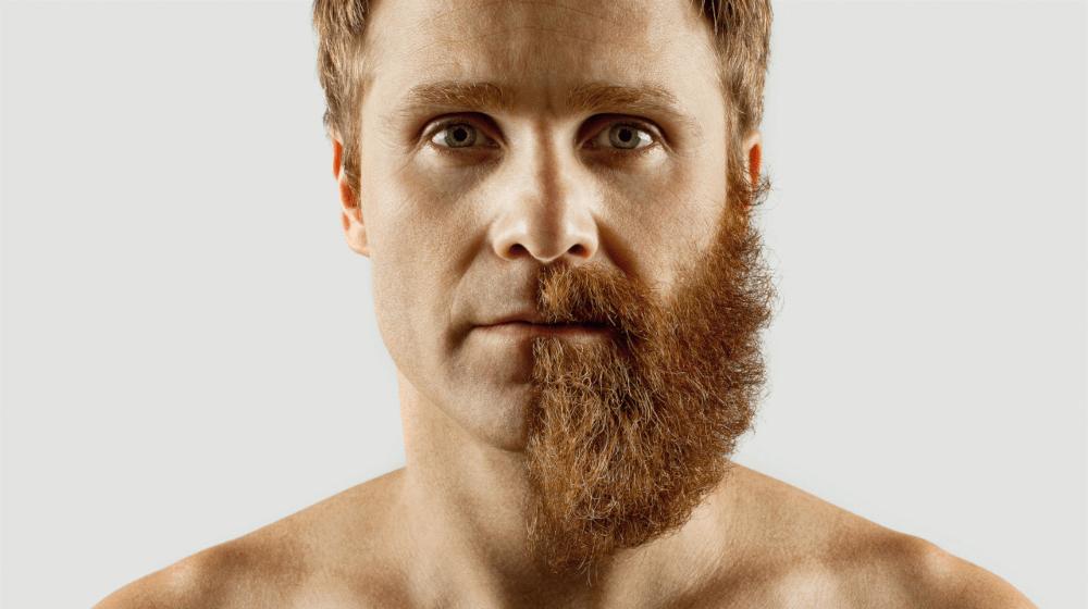 Depilación láser barba